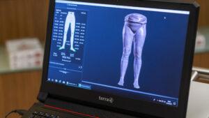 Schuh Tasch, Orthopädie-Schuhtechnik, Messtechniken